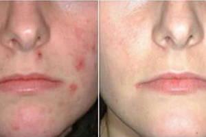dermaseptic cream до и после применения