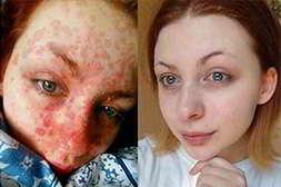 Псорикс восстанавливает кожу