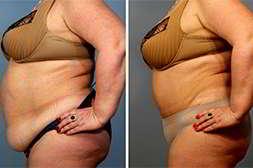 Tonusfit снижает вес без побочных эффектов