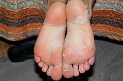 Спрей cellomon эффективен при огрубевшей кожи на ступнях