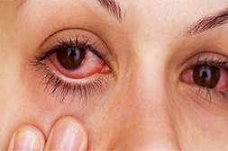 Препарат Оптитрин снижает риск развития глаукомы.