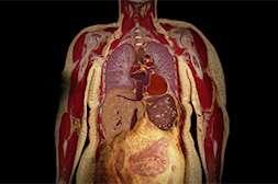 Diagen растворяет жировые отложения во внутренних органах.