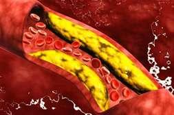 Состав Артетона очищает сосуды от холестерина.