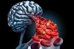 Состав Гипертонорма приводит кровоснабжение в норму.
