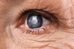 Окулминекс применяется для профилактики, лечения, предупреждения заболеваний.