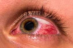 Препарат Окулминекс лечит катаракту, глаукому, воспалительные процессы.