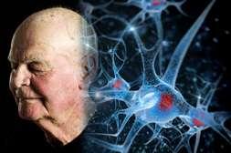 Состав МозгТерапи предотвращает возрастные изменения.