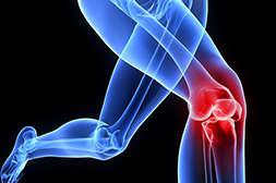 Состав Артефорта предотвращает суставные болезни.