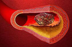 Польза Cordis Meridian в предотвращении образования тромбов.